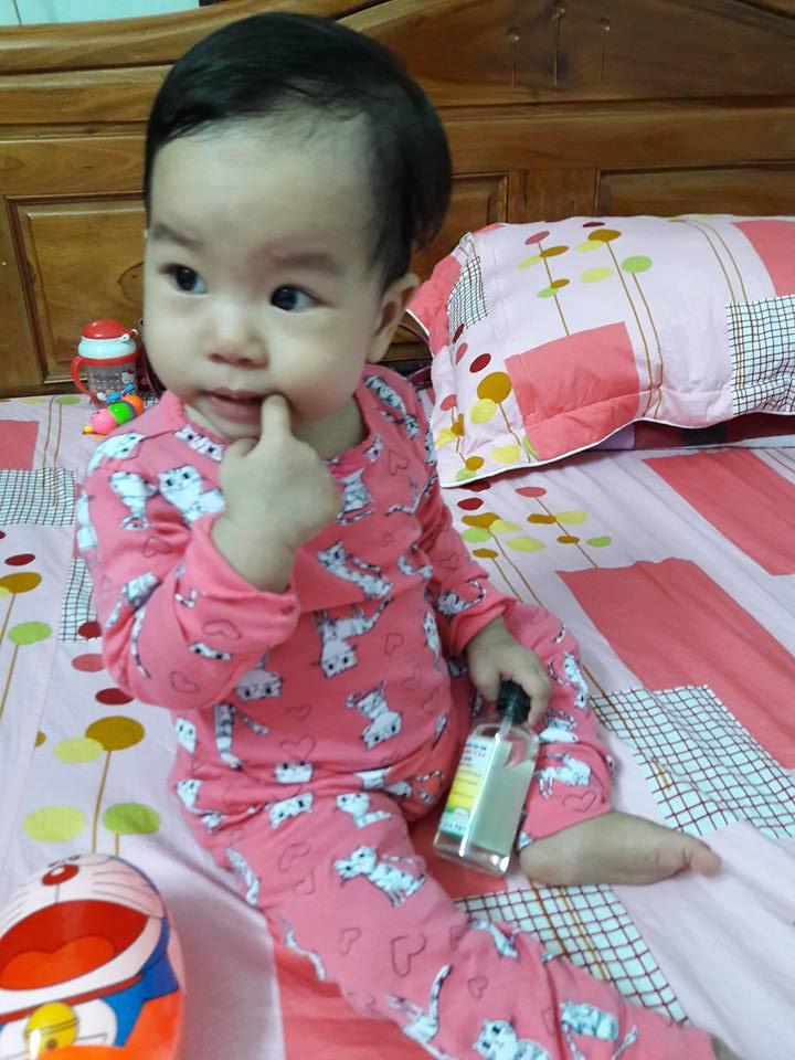 Mới 18 tháng mà tháng nào bé Bình An cũng phải đi viện, uống kháng sinh (ảnh NVCC)