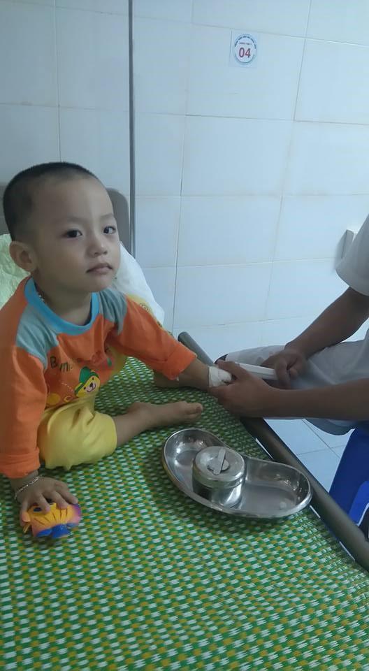 Suốt 2 năm, bé Hiếu liên tục ho, sổ mũi kéo dài dẫn tới viêm sâu phải nằm viện(Ảnh: NVCC)